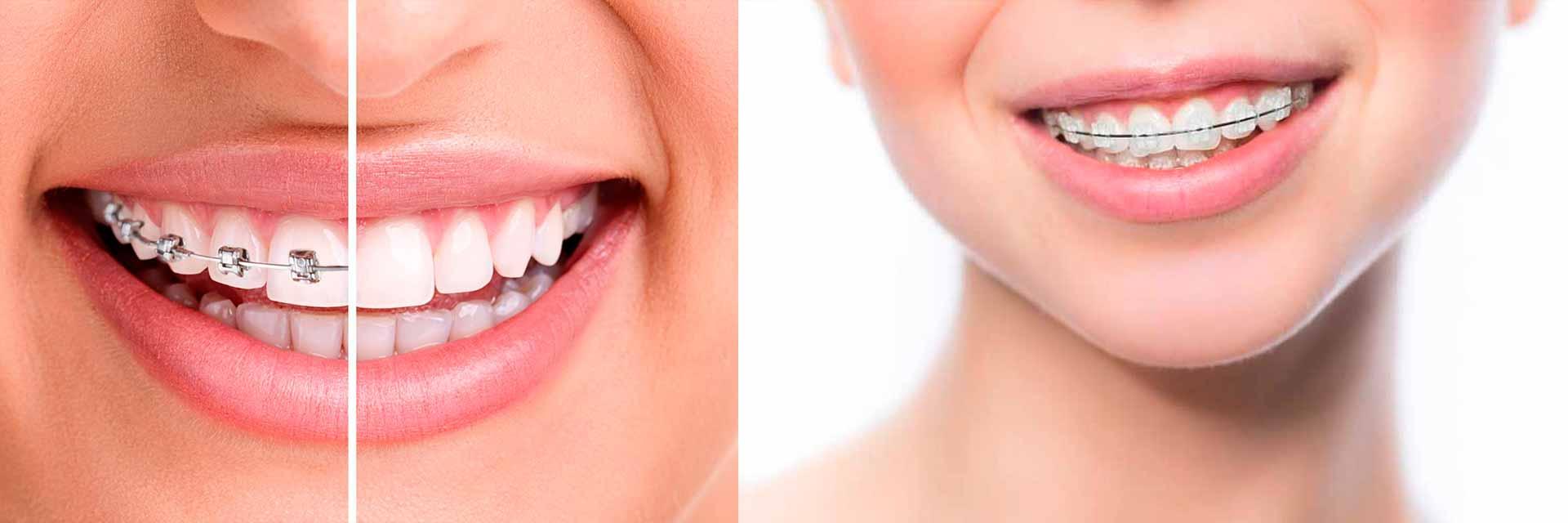 ortodonzia-tradizionale2